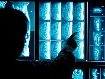 imagem mostra profissional de radiologia