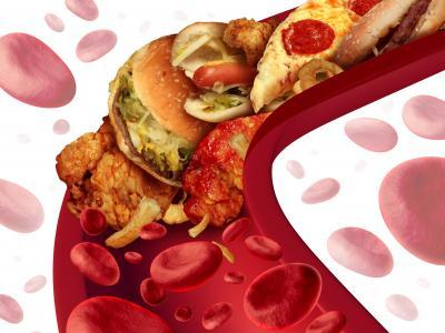 Ilustração mostra uma veia entupida com comidas gordurosas