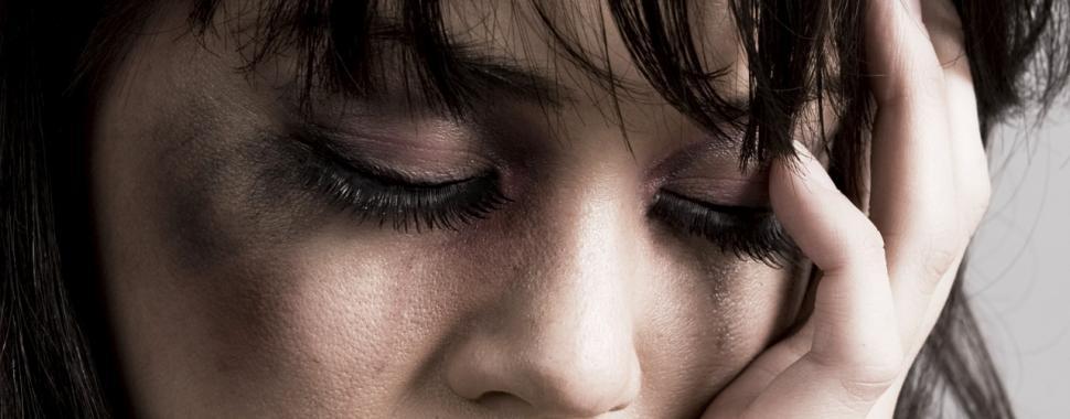 Foto do rosto de uma mulher machucada