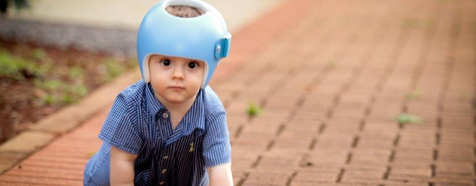 imagem mostra bebê com aparelho ortótico